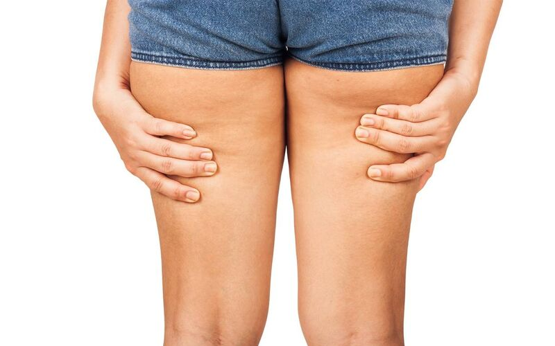 cellulit z tyłu nóg